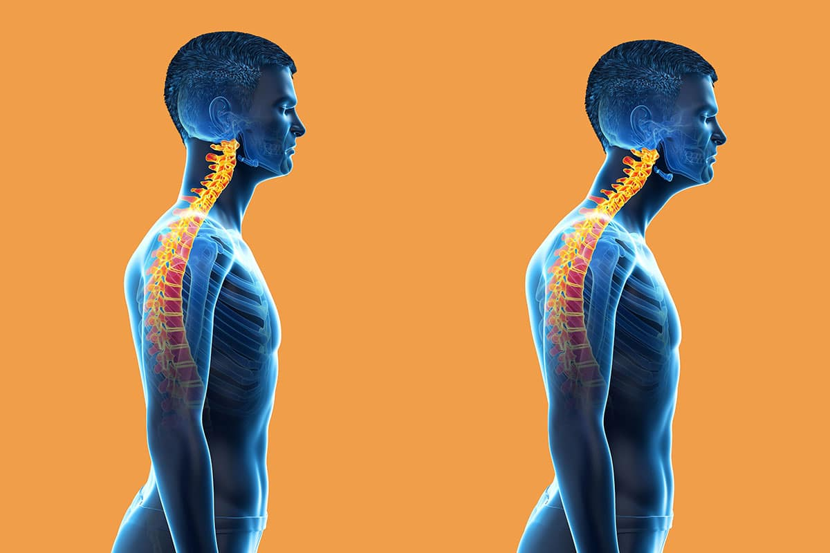 comparison of a man with and without forward head posture - also referred to as nerd neck.